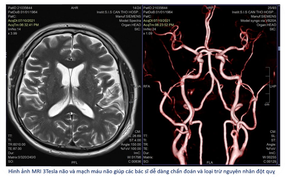 Hình anh MRI não bn H.V.D Cứu sống bệnh nhân hôn mê sâu bằng hồi sức tích cực